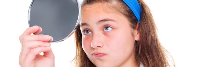 Un vaccin contre l'acné à l'étude aux États-Unis