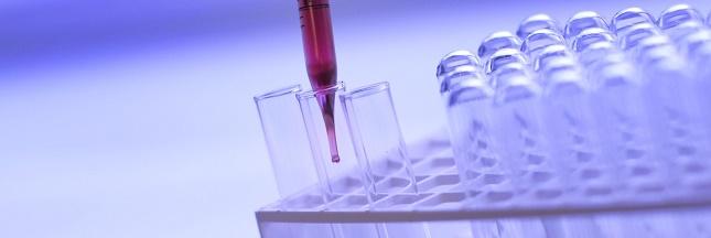 Trisomie: un nouveau dépistage avec une prise de sang