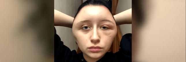 Colorations pour cheveux: l'alerte d'une étudiante après une allergie grave