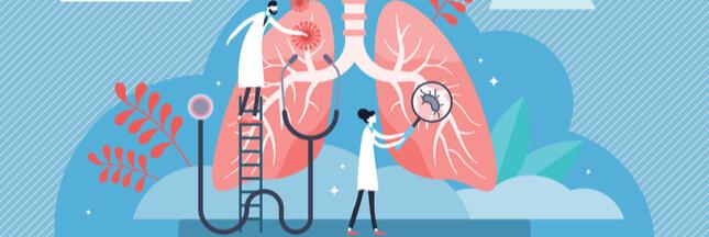 Immunothérapie, thérapies ciblées: les nouveaux traitements du cancer du poumon