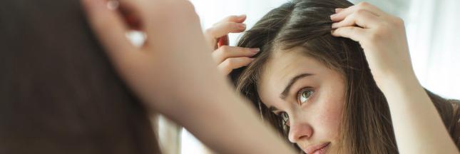 Biotine ou vitamine B8: ses bienfaits sur les cheveux