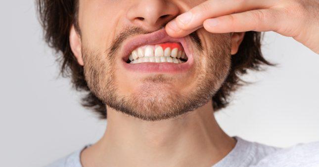 Gencive gonflée? Causes et remèdes
