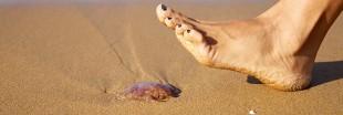 Piqûre de méduse : les remèdes qui soulagent