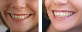 sourire dents blanches