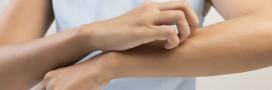 Démangeaisons: 5 astuces contre les piqures de moustiques