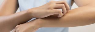 Démangeaisons : 5 astuces contre les piqures de moustiques