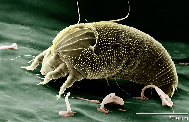 how to get rid of sand mites australia