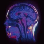 guerre des cerveaux