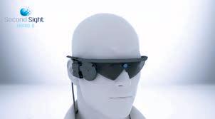 non voyant implant ,prothèse bionique
