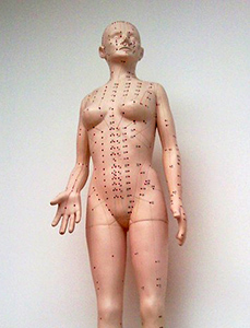 acupuncture-modele-medical