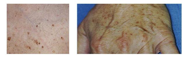 Les parasites la pigmentation sur la personne