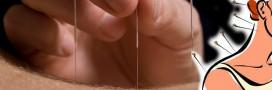 L'acupuncture, nouvel allié minceur?