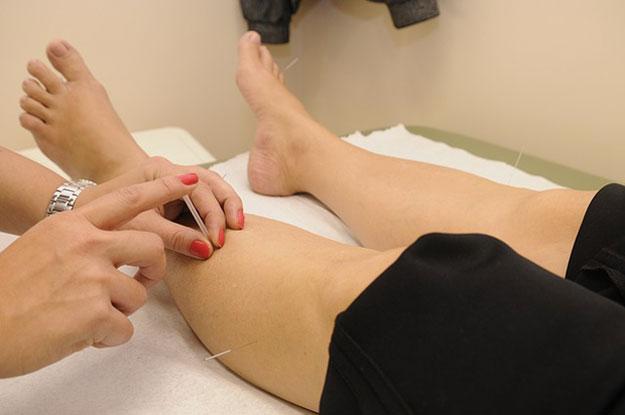 acupuncture-medecine-regime, l'acupuncture