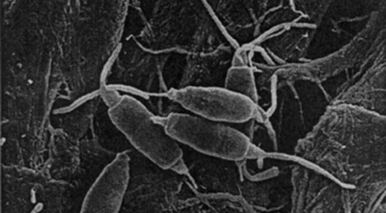 Vue au microscope du Pestalotiopsis microspora anti-plastique