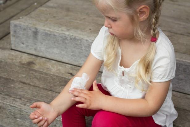 lutter contre l'eczéma des enfants