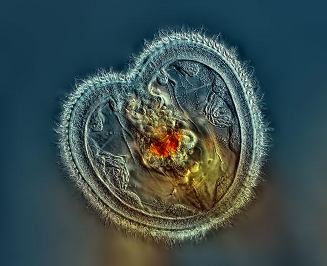 Photos au microscope Rogelio_Moreno_rotifer_1