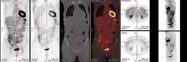Que sait-on de la radioactivité lors du diagnostic médical ?