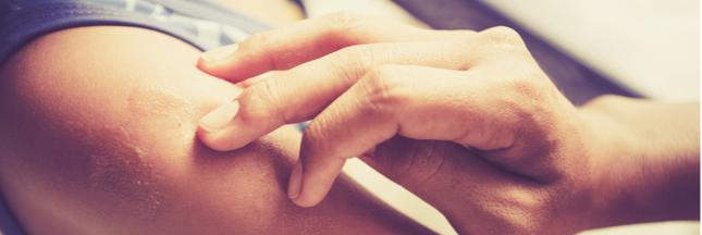 Agent spécial contre les problèmes de peau : l'argent colloïdal