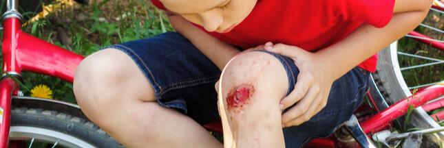 Trucs et astuces: soigner naturellement les coups, bleus et écorchures
