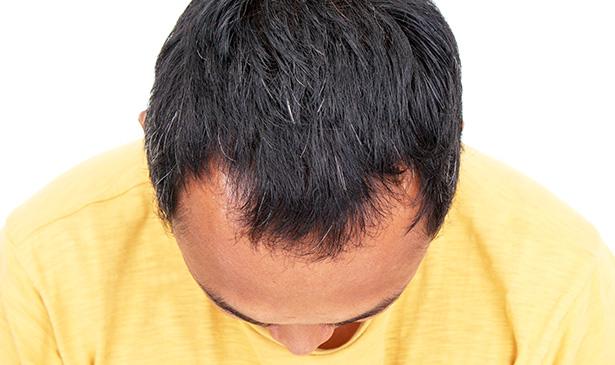Les masques sur une forte chute des cheveux