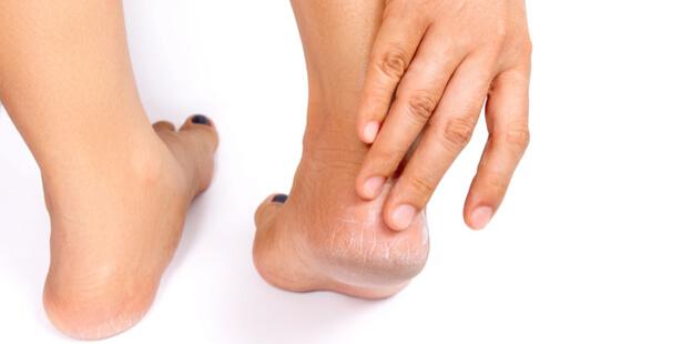 pieds secs