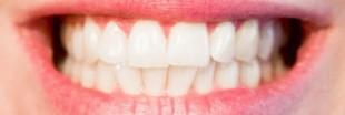 Une mauvaise hygiène dentaire nuit à notre santé cardiaque