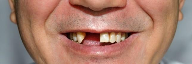 les dents soign es par un m dicament contre alzheimer. Black Bedroom Furniture Sets. Home Design Ideas