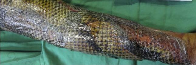 Des peaux de poisson pour traiter les brûlures