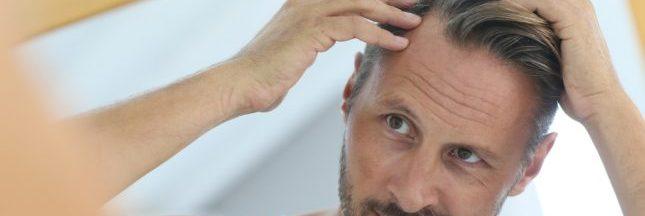L'ombre de la calvitie plane-t-elle sur votre tête? Lutte anti-chute