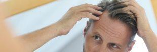 L'ombre de la calvitie plane-t-elle sur votre tête ? Lutte anti-chute