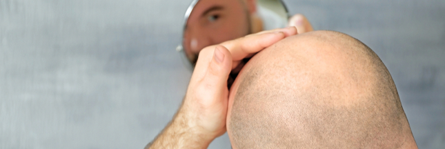 Calvitie : un traitement bientôt trouvé ?