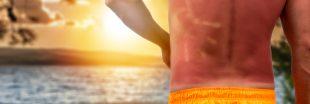 Coup de chaleur, coup de soleil : attention, danger !