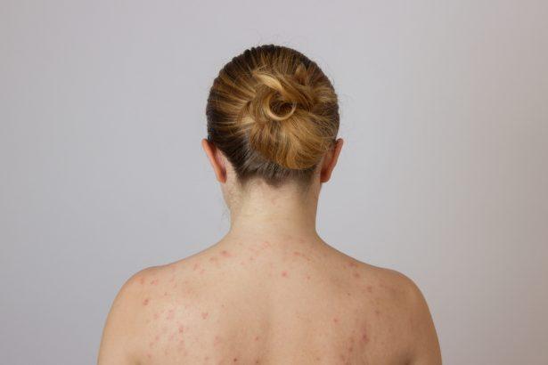 acné du dos