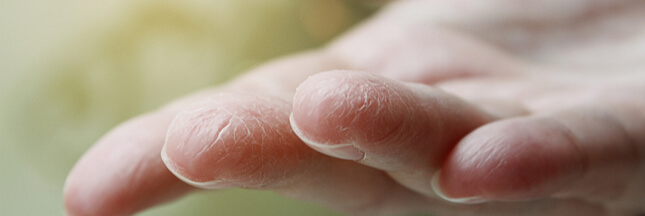 les crevasses mains