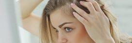 Chute de cheveux: ne vous prenez plus la tête!