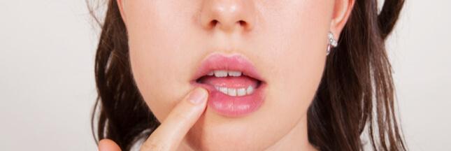 Comment soigner un bouton de fièvre naturellement ?