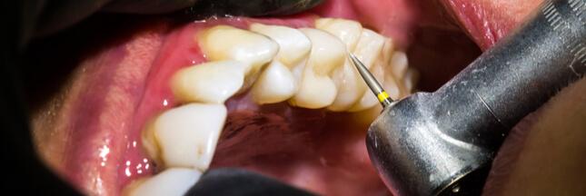 des chercheurs font repousser l 39 mail dentaire pour soigner les caries. Black Bedroom Furniture Sets. Home Design Ideas