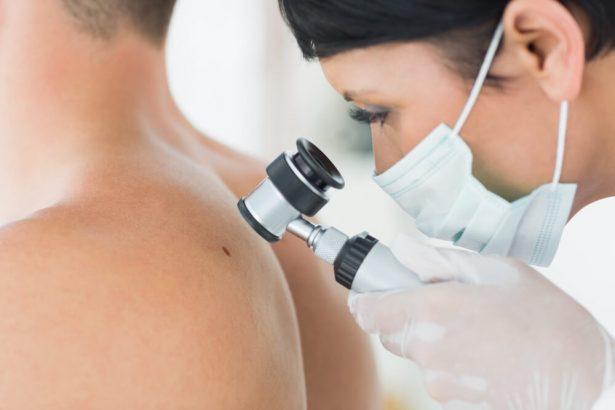 grain beauté dangereux, examen dermatologue