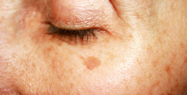 masque curcuma visage, curcuma pour la peau