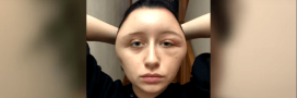 Colorations pour cheveux : l'alerte d'une étudiante après une allergie grave