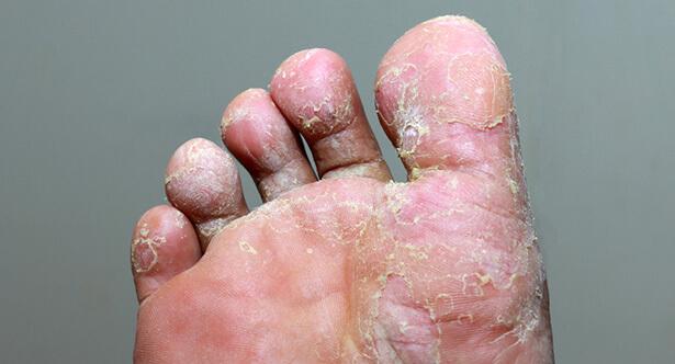 pied d'athlète traitement maison mycose des pieds
