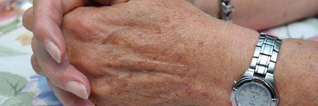 Comment se débarrasser des taches brunes liées à l'âge ?