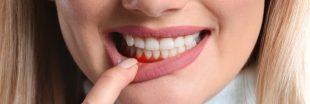 5 remèdes naturels contre les problèmes de gencives