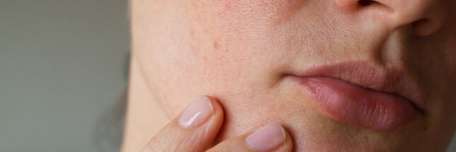 Les effets du confinement sur la peau