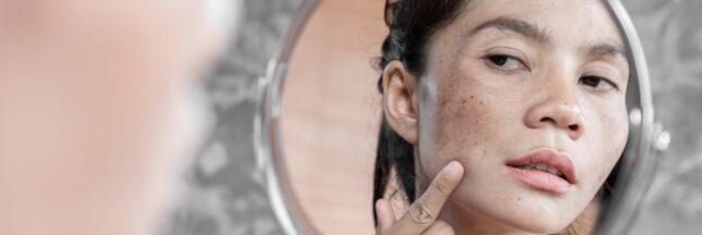 Lentigo: quand le soleil laisse des taches sur la peau