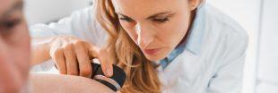 Déconfinement et soleil : les dermatologues alertent des dangers